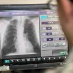 Diagnosticar el coronavirus con radiografías muy pronto será posible