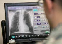 ¿Cómo diagnosticar el coronavirus con radiografías?